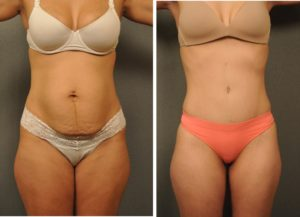tummy-tuck-abdominoplasty