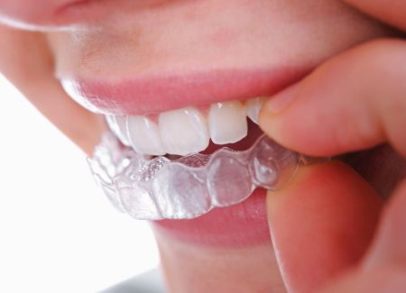 Dental Braces Structural and Aesthetic Benefits and How They Work