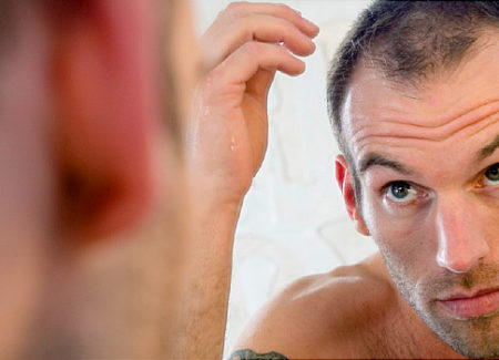 Hair Care: 3 Treatments for Falling Hair That Really Work
