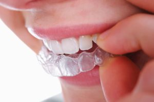 Dental Braces: Structural and Aesthetic Benefits and How They Work