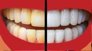 Simple Ways to Keep Your Teeth and Gums Healthy