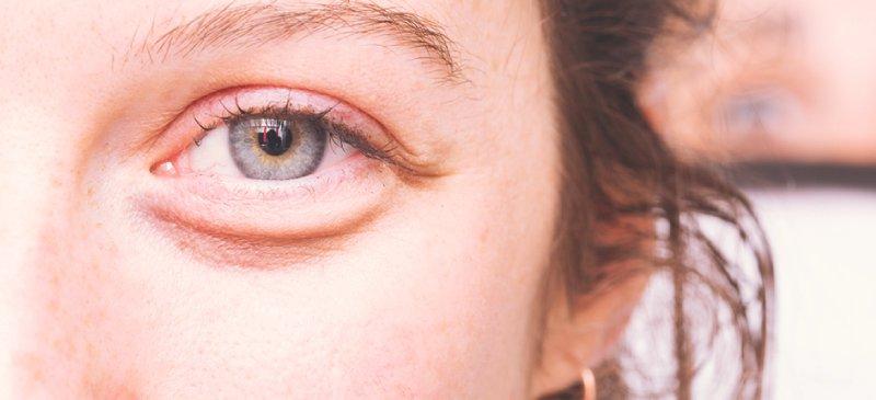 Under Eye Cares